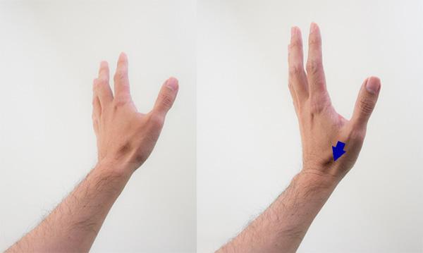 スナッフボックス方向に動かした手首の画像